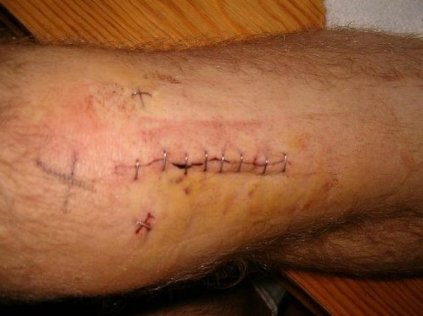 Knee surgery in the end of 2009.